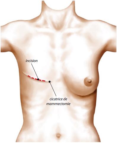 Reconstruction du sein par prothèse