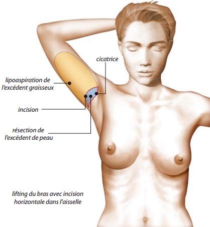Lifting face interne bras-