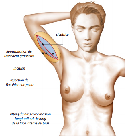 Lifting face interne bras